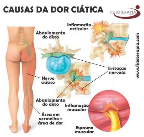 Das pernas frente da para a costas das dor inferior parte