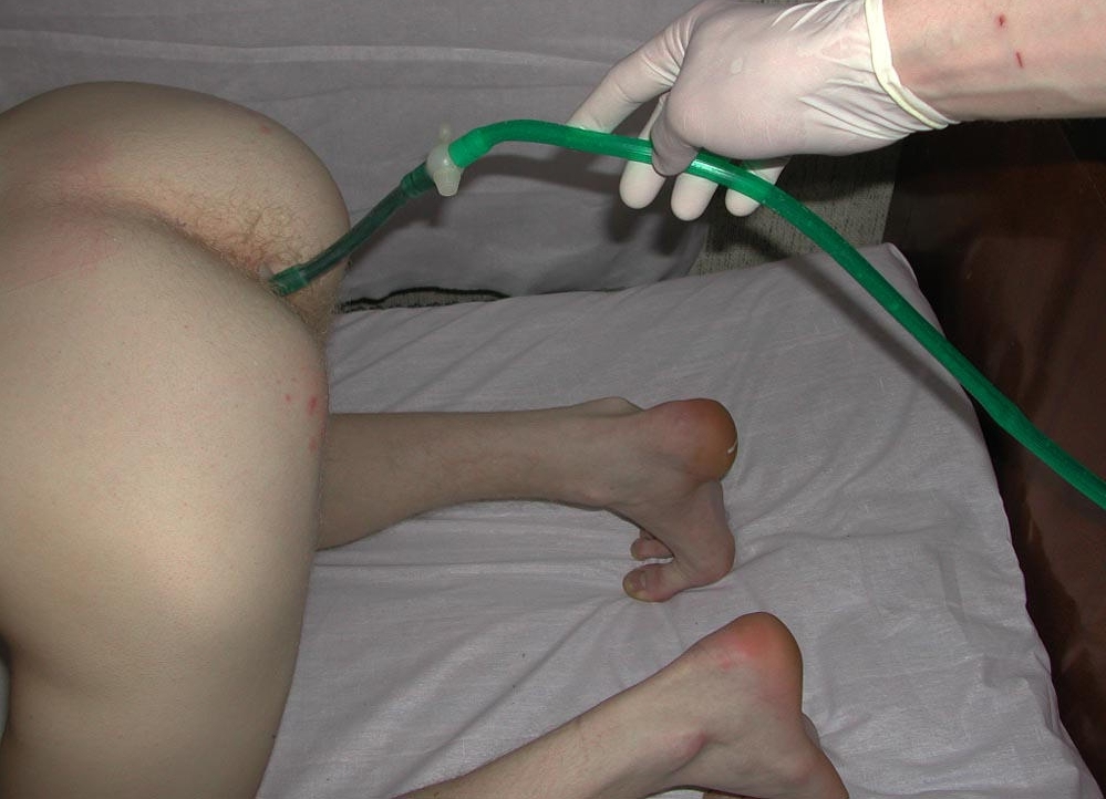 Dion039s first enema retention test