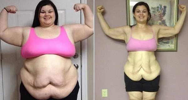 You Will Be Shocked How This 17-YEAR-OLD GIRL Lost Half Her Weight in Just 1 Year!