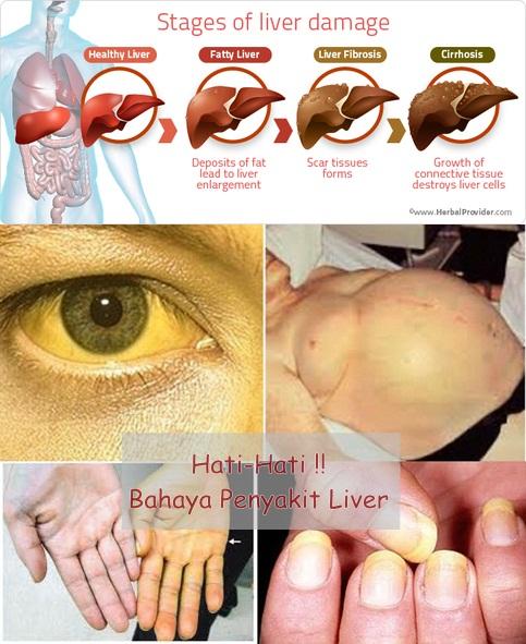 Pengobatan Ampuh Sembuhkan Penyakit Liver Secara Efektif Dan Cepat 100 % Aman Untuk Semua Usia