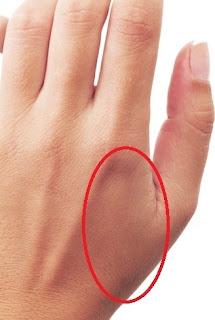 cara meredakan sakit gigi dengan memijat saraf di tangan