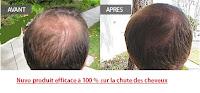 romarin contre la perte des cheveux