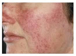 Clube Da Est 233 Tica Quem Tem Dermatite Pode Fazer