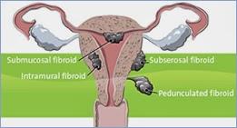 http://www.mannatfertility.com/Laparoscopic-Surgery.php