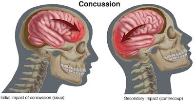 Concussion Diagram - El Paso Chiropractor