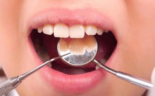 Alasan Dokter Gigi Tak Mau Cabut Gigi Saat Masih Sakit, Ternyata Efeknya Mematikan