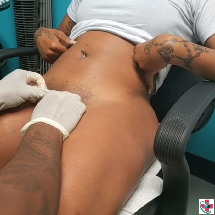 Female Genital Piercing