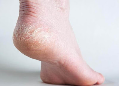 Nứt gót chân nguyên nhân từ đâu