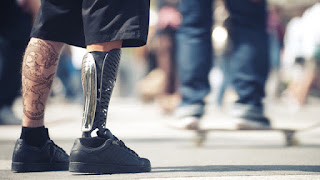Cambridge Bio-Augmentation System's Technology Set To Disrupt The Prosthetic Industry