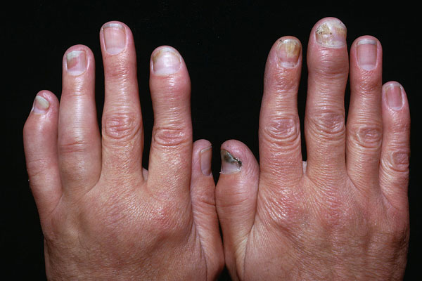 Псориатический артрит суставов пальцев рук фото