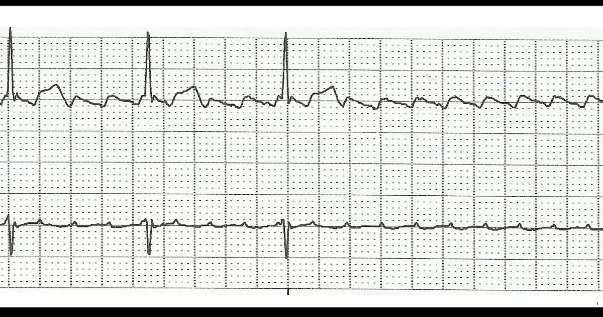 Float Nurse: Practice EKG Rhythm Strips 132