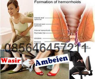 Ambejoss dan Wasir (Hemoroid) Penyakit