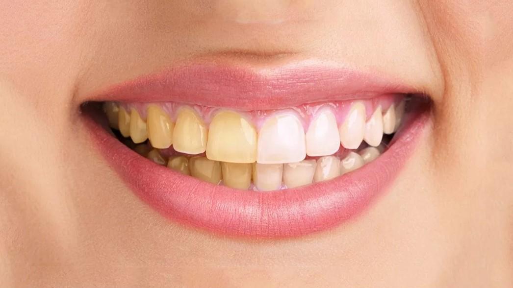 Cara Merawat Dan Memutihkan Gigi Secara Alami Cara Diet Sehat