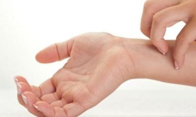 Obat Kulit Gatal Di Selangkangan Dan Tangan Secara Tradisional Dan Alami