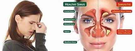 www.Cara Terbaik Untuk Mengatasi Penyakit Influenza Dan Sinus