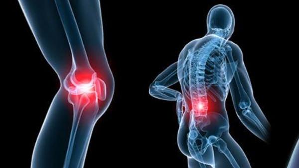 الإلتهاب العظمي المفصلي-أعراضه - الوقاية من الالتهاب - العلاج .