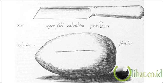 Joannes Lethaeus,Born circa 1620...Operasi pengangkatan batu Kandung kemih seberat 4 ons