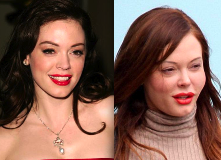 Rose Mcgowan Surgery Celebrity Pictures