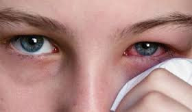 Cara mengatasi mata merah dan sakit