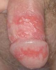 Dejta med herpes genitalis