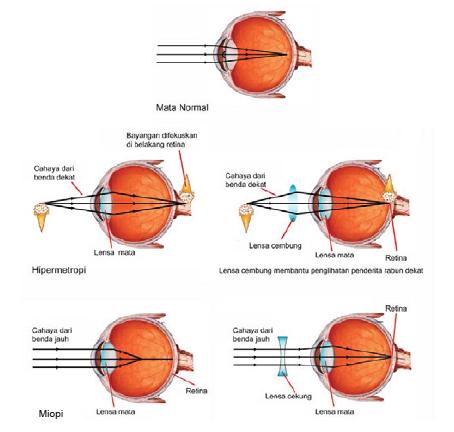 penyakit mata rabun