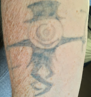Fading after three picosure and four q-switched laser tattoo removal sessions.
