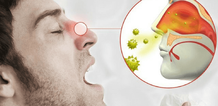 remedios contra la rinitis