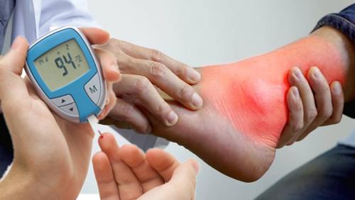 Ada Apa dengan Penyakit Asam Urat dan Penyakit Diabetes ?