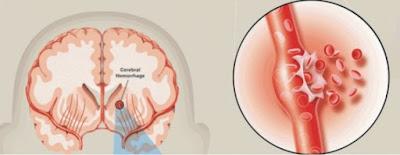 Pecah pembuluh darah di daerah otak menyebabkan stroke hemoragik