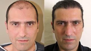 تجارب زراعة الشعر قبل وبعد
