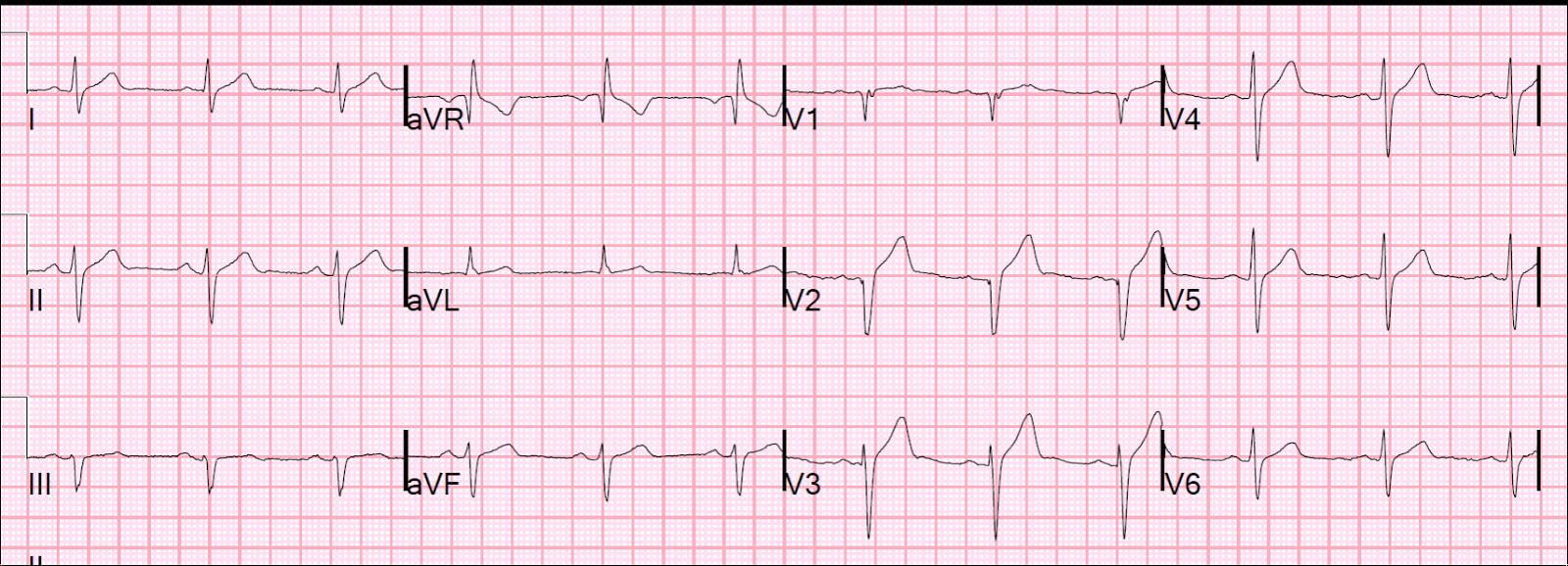 Smith s ECG Blog...Q Wave
