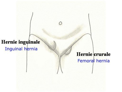 Homeopathic Remedies For Inguinal Hernia – Holistic Hernia