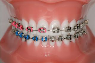 Informations sur les accolades dentaires