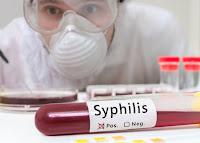 Obat Sipilis di Apotek Paling Ampuh untuk Pria dan Wanita