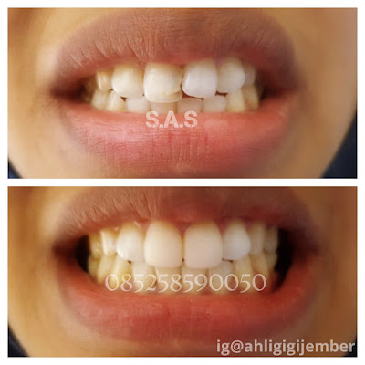 Hasil perbaikan merapikan gigi miring dan keropos