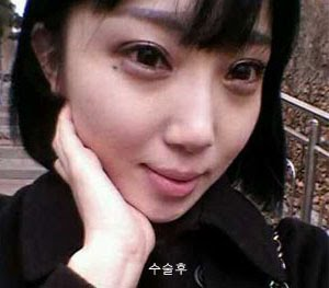 짱이뻐! - After Eye Plastic Surgery, I'd Like To Do Nose Surgery
