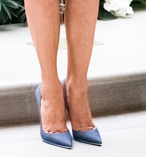Photo crop of Melania Trump's feet with toes forced  into unnatural pointed shapes. Stilettos  force the body forward so that  the balls of the foot must   weight in an unnatural manor. (1)