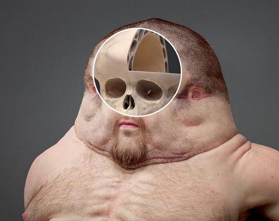 Super-humano a prova de colisões de carros - Crânio
