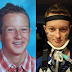 13 Year Old Boy Paralyzed from Neck Down After Given Gardasil HPV Vaccine