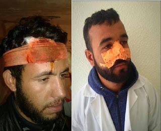 10 ألاف إطار: عندما تنتصر لغة العنف على لغة حقوق الإنسان بالمغرب