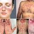 Penyakit autoimun: Tidak Banyak Dikenal Tapi Banyak Yang Menderita