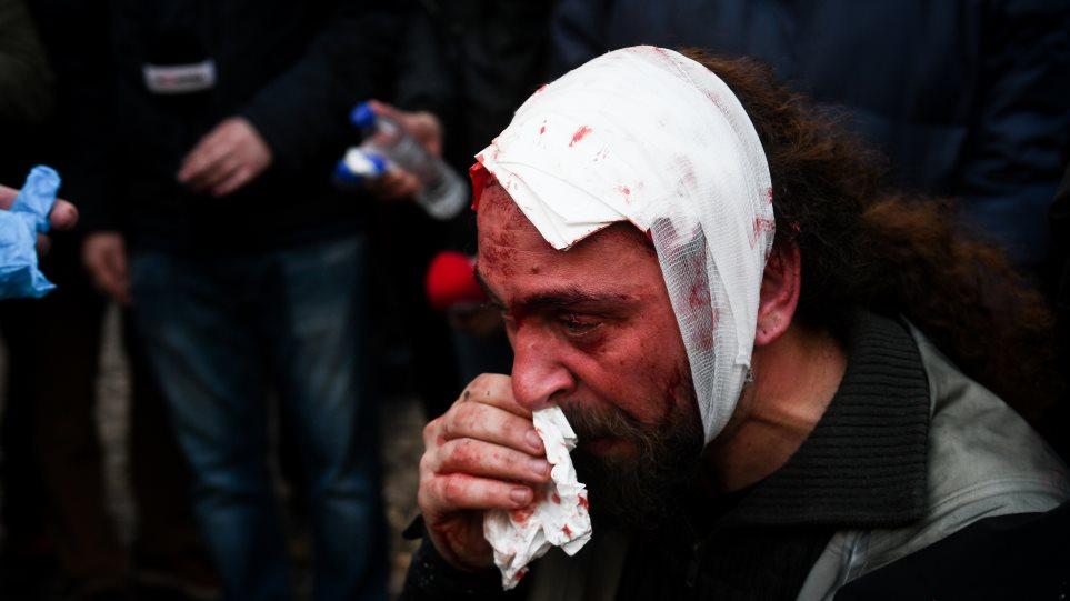 Δείτε τι λέει η αστυνομία Συλλαλητήριο για τη Μακεδονία: 49 τραυματίες, μεταξύ των οποίων 25 αστυνομικοί!