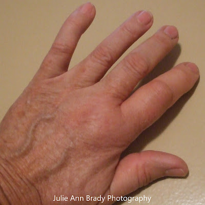 Bee Sting on Pointer Finger of Left Hand