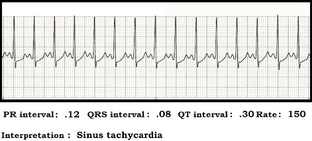 Float Nurse: ECG Rhythm Strip Quiz 89: Interval measurements