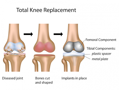 knee replacement suregry