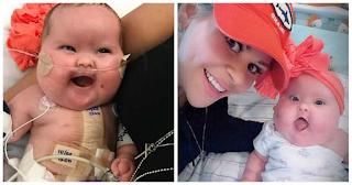 Μωρό με σύνδρομο Down και δύο καρδιακές βλάβες κατάφερε να επιβιώσει και γιορτάζει τους 7 μήνες ζωής του