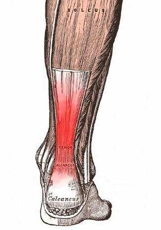 Running writings: Achilles tendonitis in runners: A