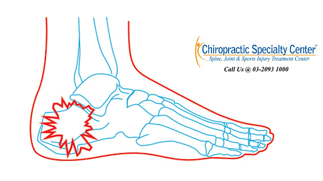 plantar fasciitis and heel pain in Malaysia