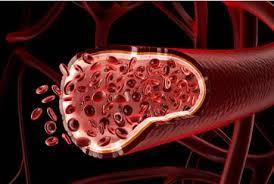 Cara Mengobati Penyakit Darah Kental