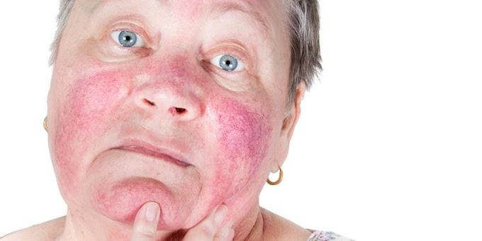 Tes Kepekaan Mandiri Pada Kosmetik